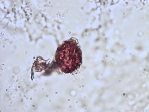Pollen from the plant Species Asplenium adiantum-nigrum.
