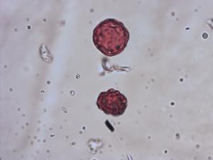 Pollen from the plant Species Plantago alpina.
