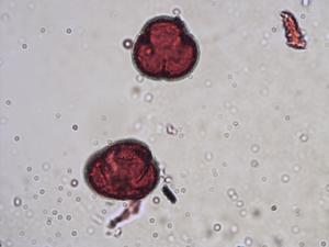Pollen from the plant Species Rumex rupestris.