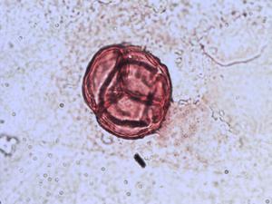 Pollen from the plant Species Erica cinerea.