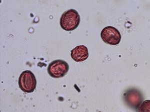 Pollen from the plant Species Salix viminalis.