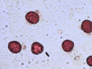 Pollen from the plant Species Lysimachia nemorum.