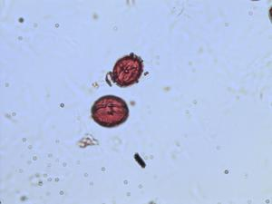 Pollen from the plant Genus Xylosma.