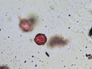 Pollen from the plant Species Potentilla erecta.