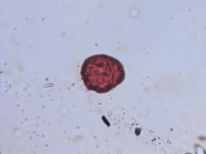 Pollen from the plant Species Pinguicula vulgaris.