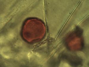 Pollen from the plant Genus Catabrosa.