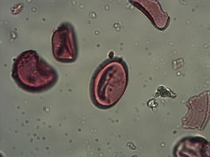 Pollen from the plant Species Thelypteris limbosperma.