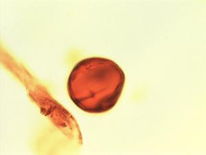 Pollen from the plant Genus Trichilia.