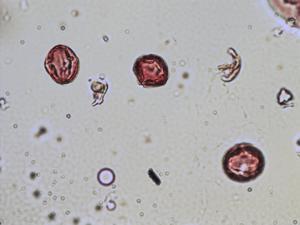 Pollen from the plant Species Sedum acre.