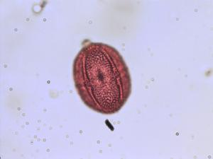 Pollen from the plant Genus Fagopyrum.