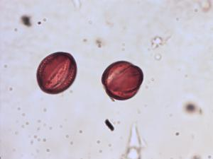 Pollen from the plant Genus Phlomis.