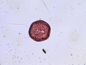 Pollen from the plant Species Minuartia verna.