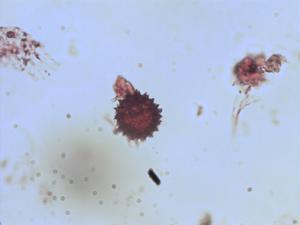 Pollen from the plant Species Pseudognaphalium bourgovii.
