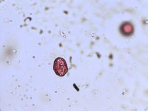 Pollen from the plant Genus Berula.