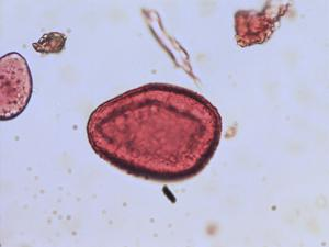 Pollen from the plant Genus Tulipa.