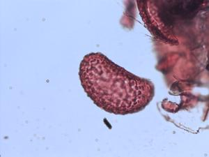 Pollen from the plant Genus Polypodium.