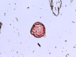 Pollen from the plant Genus Montia.