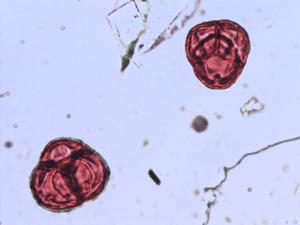 Pollen from the plant Genus Loiseleuria.