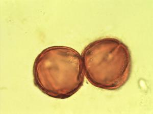 Pollen from the plant Genus Fagus.