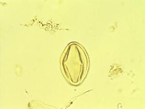 Pollen from the plant Genus Nicotiana.