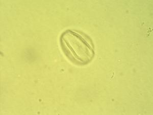 Pollen from the plant Species Combretum tanaense.