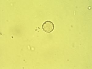 Pollen from the plant Genus Phyllanthus.