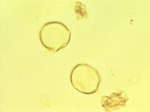 Pollen from the plant Genus Olax.