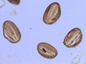 Pollen from the plant Genus Acanthus.