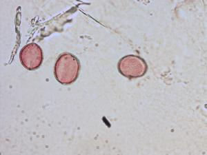 Pollen from the plant Species Tofieldia calyculata.