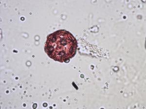 Pollen from the plant Species Cerastium ligusticum.