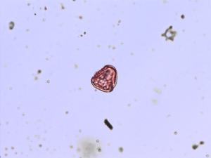 Pollen from the plant Species Thesium humifusum.