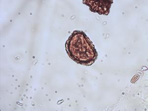 Pollen from the plant Species Asplenium trichomanes.