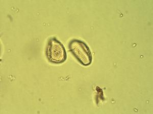 Pollen from the plant Genus Stanfieldiella.