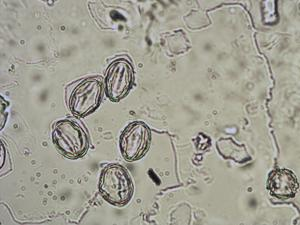Pollen from the plant Species Sedum anglicum.