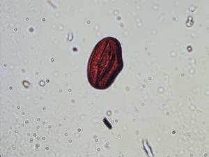 Pollen from the plant Species Trifolium montanum.