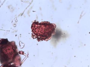 Pollen from the plant Genus Polystichum.