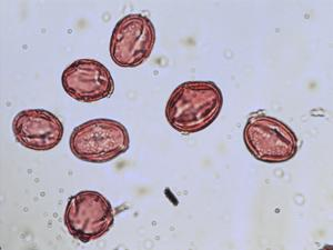 Pollen from the plant Species Trifolium hybridum.
