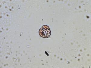 Pollen from the plant Genus Parnassia.