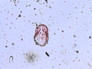 Pollen from the plant Species Oenanthe fistulosa.