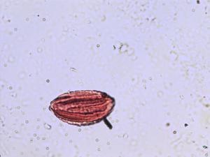 Pollen from the plant Species Ephedra major.