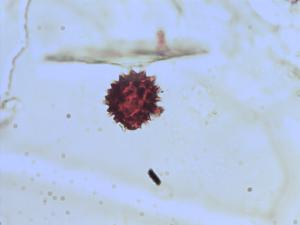 Pollen from the plant Genus Melampodium.