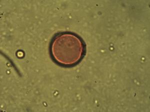 Pollen from the plant Genus Wahlenbergia.
