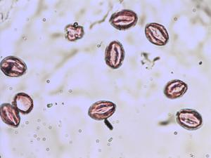 Pollen from the plant Species Salix aurita.
