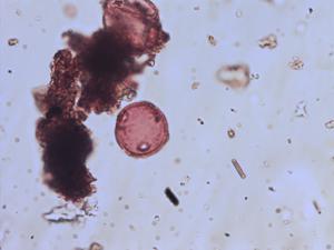Pollen from the plant Species Plantago coronopus.