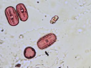 Pollen from the plant Species Vicia grandiflora.