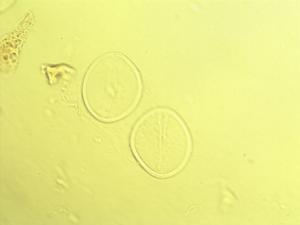 Pollen from the plant Genus Warburgia.