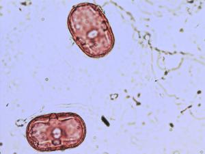 Pollen from the plant Species Vicia cracca.