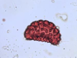 Pollen from the plant Species Polypodium vulgare.