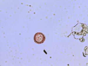Pollen from the plant Genus Teesdalia.