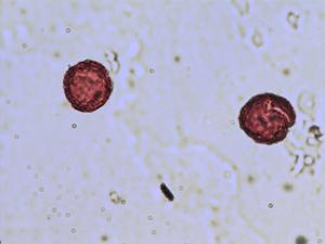 Pollen from the plant Species Ranunculus acris.